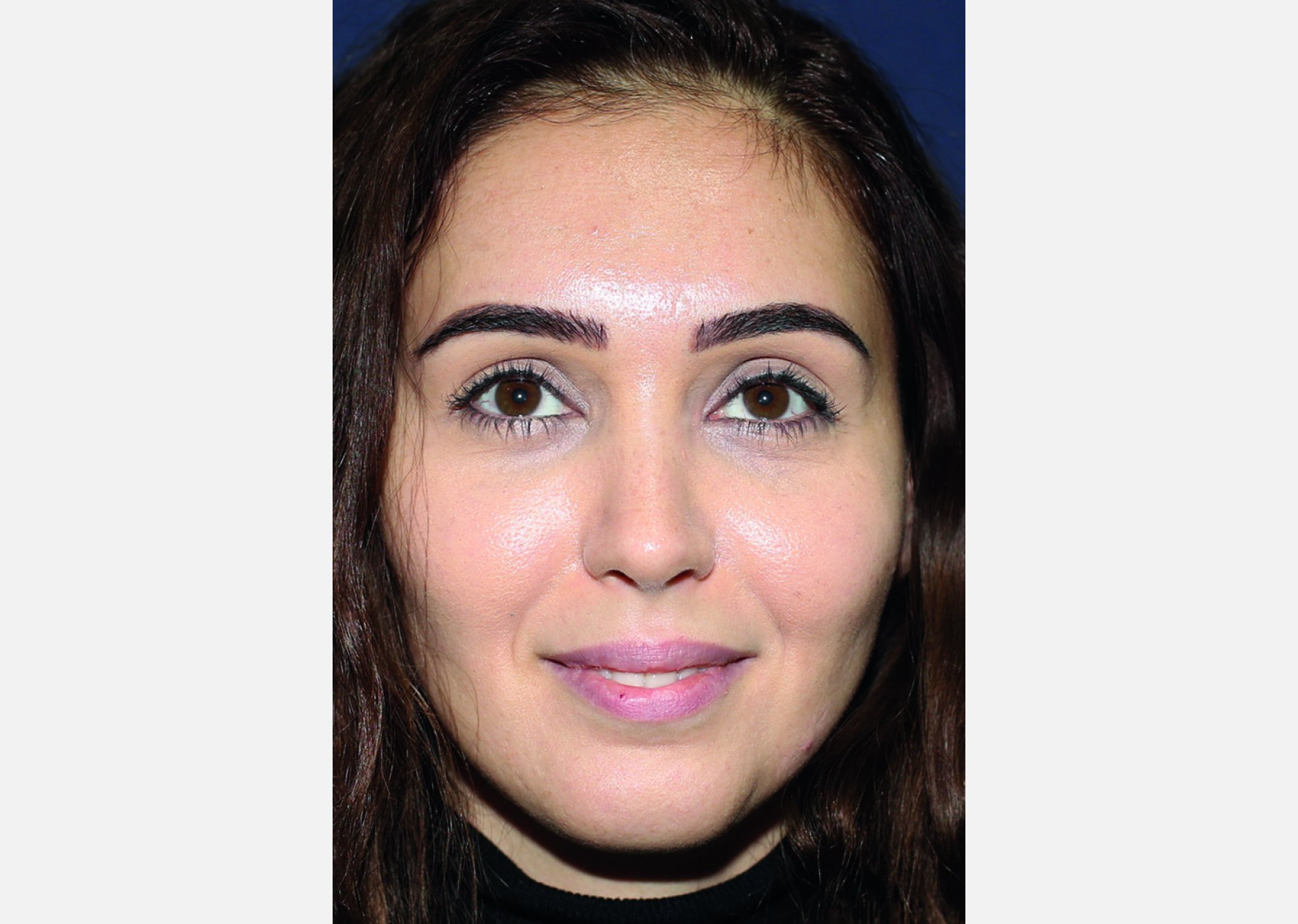 After-rhinoplasty in istanbul