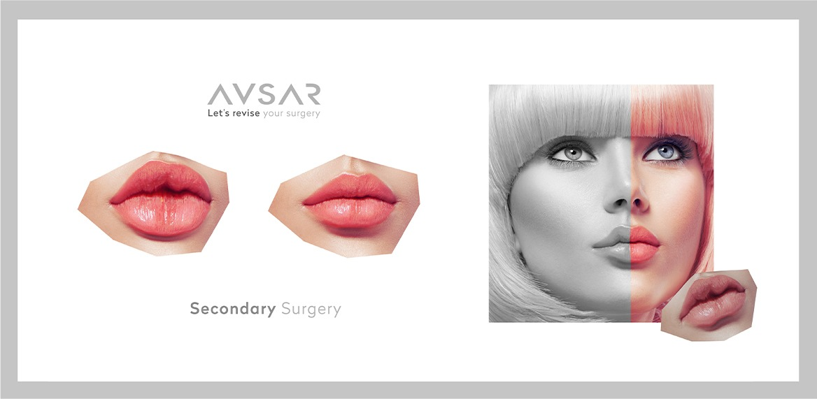secondary plastic surgery in turkey